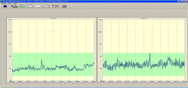 リアルタイムモニタリングスクリーン(心拍グラフ報告書)
