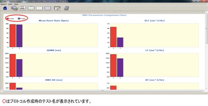 心拍変動指標比較グラフ